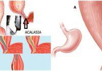 que es la acalasia esofagica