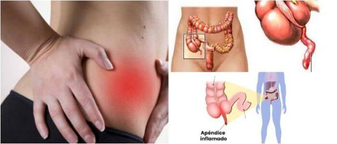 que es la apendicitis
