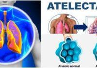 que es la atelectasia pulmonar