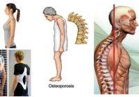 cifosis dorsal angulo normal