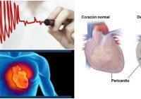 cuales son las causas del derrame pericárdico