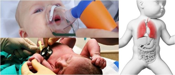 que es la displasia broncopulmonar neonatal