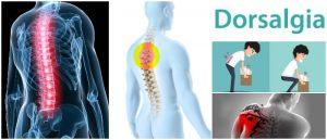9 signos de advertencia de su Dolor de espalda alta desaparición