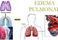 que es el edema pulmonar agudo