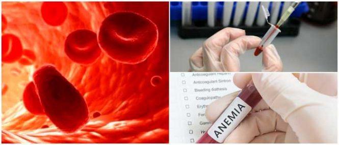 eliptocitosis en glóbulos rojos