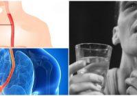 espasmo esofagico por estres