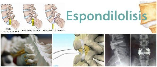 que es la espondilitis anquilosante