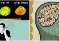 que es la esquizofrenia afectiva