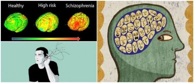 Esquizofrenia: Síntomas, Causas, Diagnóstico, Complicaciones ...