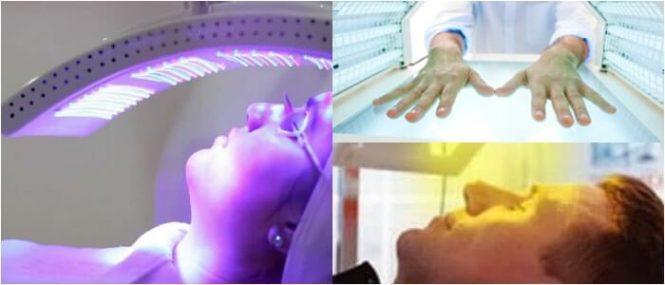 la fototerapia en el vitiligo