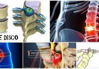 que es la hernia de disco dorsal