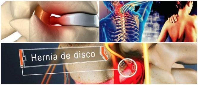 Hernia Discal Cervical: ¿Qué Es? Anatomía De Los Discos, Síntomas ...