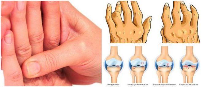 que es la osteoartritis de rodilla