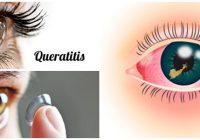 cuales son los síntomas de la queratitis