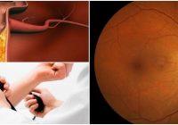 cuales son los grados de la retinopatia hipertensiva