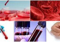consecuencias del plomo en la sangre de un bebe