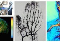 que es la angiografia abdominal