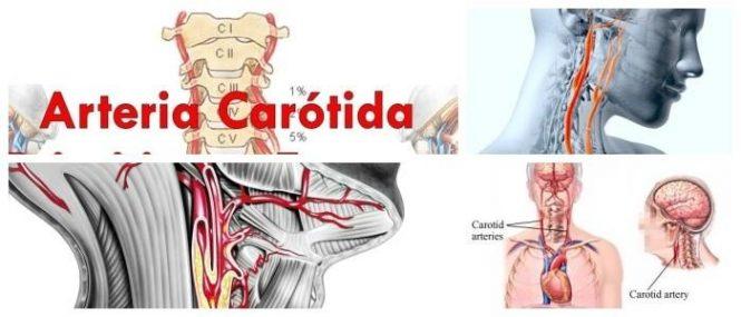 consecuencias de la arteria carótida bloqueada