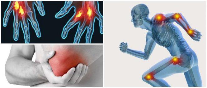 Articulaciones Fibrosas: Definición, Tipos, Funciones y Lesiones ...