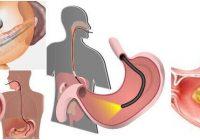 efectos de una endoscopia digestiva alta con sedacion
