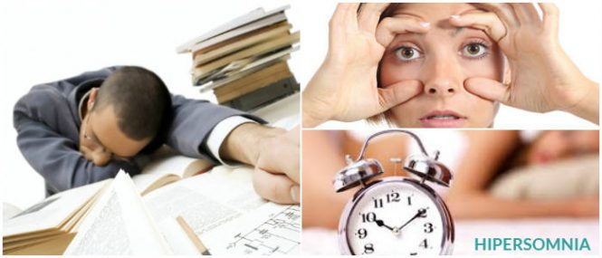 cual es el tratamiento para la hipersomnia