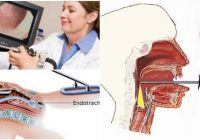 que es la laringoscopia directa