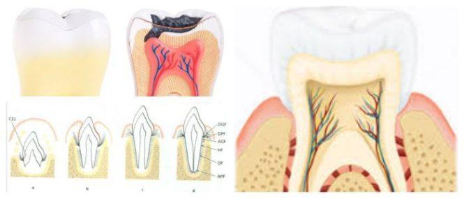que es el ligamento periodontal ancho