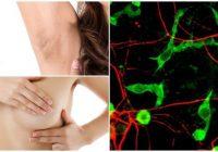 relación entre los linfonodos axilares y cáncer de mama