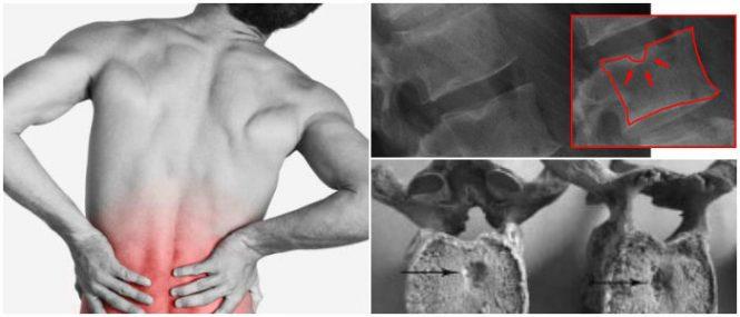 por que los nódulos de schmorl generan dolor de espalda