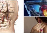 cual es el tratamiento natural para la neuralgia de arnold