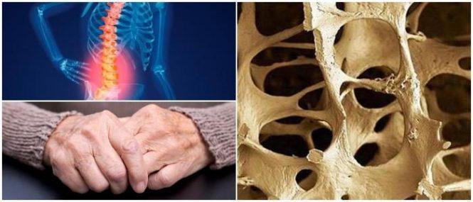 que es la osteoporosis aguda