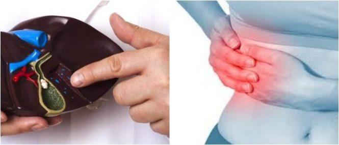 Síntomas de Problemas en la Vesícula Biliar: Causas, Diagnóstico ...