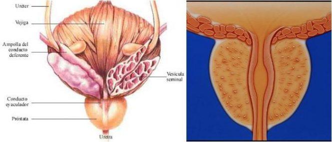 inflamación de la próstata y vesículas seminales