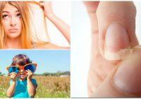 causas de la tricotiodistrofia