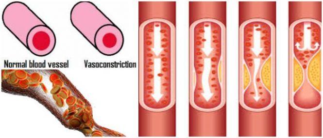 cual es el tratamiento de la vasoconstricción en bebes