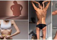 que es la anorexia nerviosa