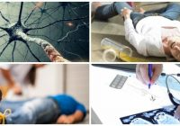 cuales son los síntomas del ataque epiléptico