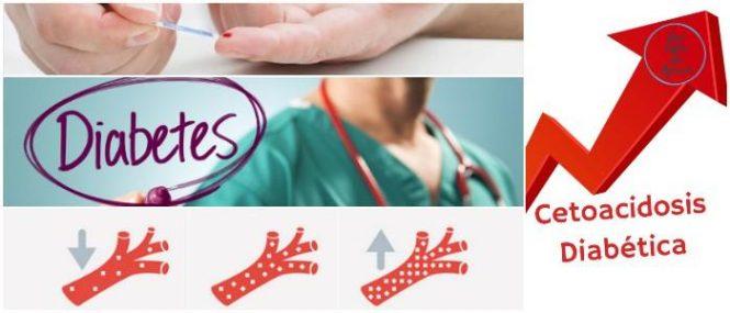 la cetoacidosis diabetica en pediatria