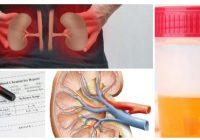 efectos de la creatinina alta en la sangre y sus síntomas