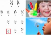 que es un cromosoma 21 alterado