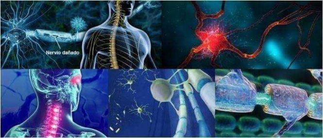 como se efectúa la desmielinización del nervio