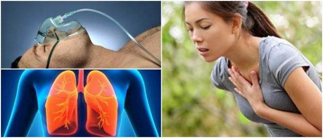 cuales son los síntomas de la dificultad para respirar por alergia