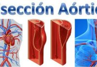 que significa la disección aortica grupo b