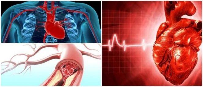 tipos de enfermedades coronarias