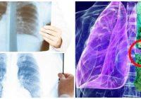 que es la fibrosis pulmonar idiopatica