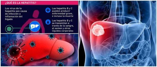 que es la hepatitis b