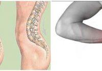 cual es la definición de hiperlordosis lumbar