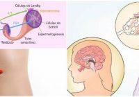 que es la hormona folículo estimulante baja