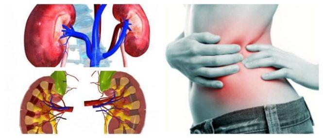 Insuficiencia Renal Aguda: Síntomas, Causas, Factores de Riesgo,  Diagnóstico, Tratamiento, Prevención y Complicaciones – Arriba Salud