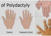 cuales son las causas de la polidactilia